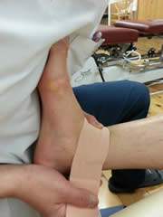 捻挫・挫傷・肉離れ・打撲のテーピング
